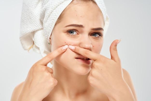 Mulher com ombros nus com uma toalha na cabeça dermatologia acne