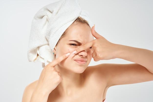 Mulher com ombros nus espremendo espinhas no rosto de dermatologia descontente