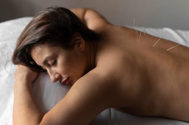 Mulher com tiro médio durante acupuntura