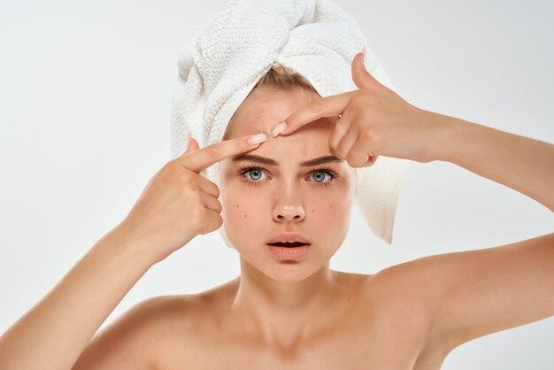 Mulher com toalha na cabeça acne no estúdio de rosto