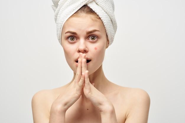 Mulher com toalha na cabeça, ombros nus, pele clara, acne, tratamentos de spa