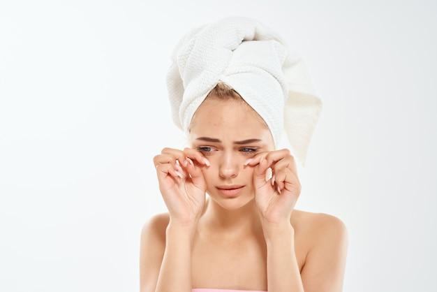 Mulher com uma toalha na cabeça problemas de pele facial dermatologia descontentamento