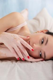 Mulher confiante com vitiligo posando