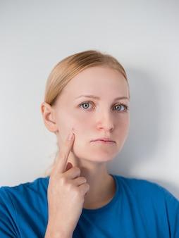 Mulher de beleza que verifica sua pele, cuidados com a pele, tratamento da acne