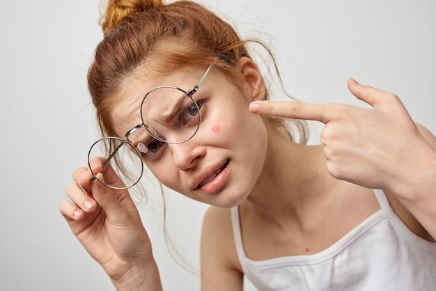 Mulher de óculos mostra um dedo a uma espinha vermelha no rosto.