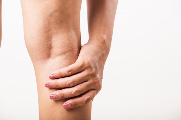 Mulher dolorosa varizes e aranha veias na perna