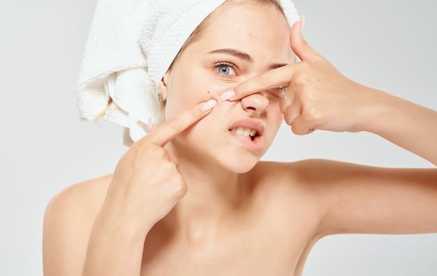 Mulher e aperta espinhas na pele problema do rosto com uma toalha na cabeça ombros nus