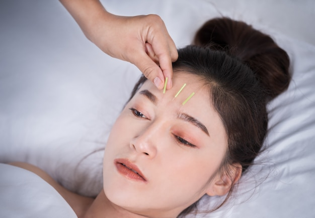 Mulher em tratamento de acupuntura na cabeça