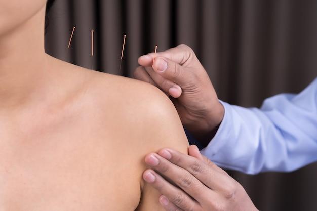 Mulher em tratamento de acupuntura no ombro