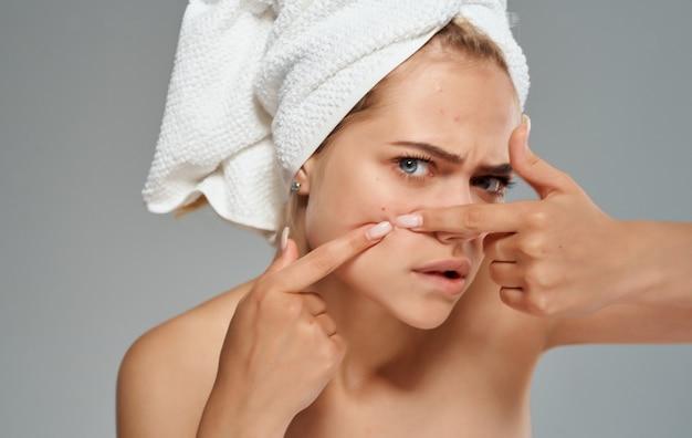 Mulher emocional com uma toalha na cabeça espreme as espinhas do rosto em um fundo cinza