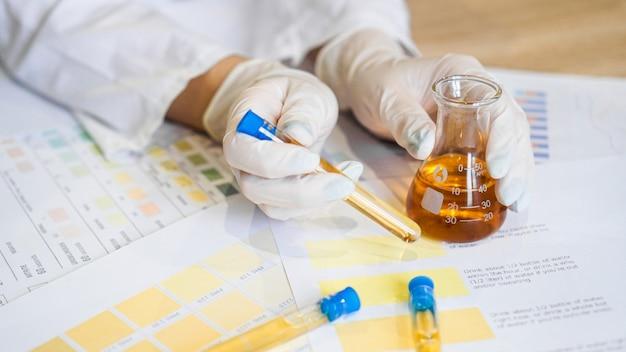 Mulher fazendo teste de urina com material de ph em laboratório. mãos femininas em luvas e um frasco de urina no consultório médico
