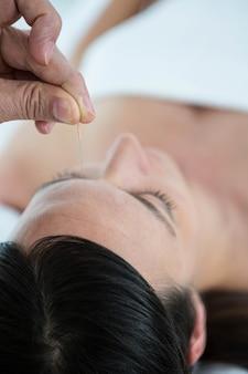 Mulher grávida em uma terapia de acupuntura no spa de saúde