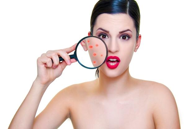 Mulher infeliz com seu conceito de cuidado de pele acne pele problemática. mulher segurando a lupa para o rosto, mostrando acne.