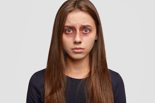 Mulher jovem assustada com hematomas posando contra a parede branca