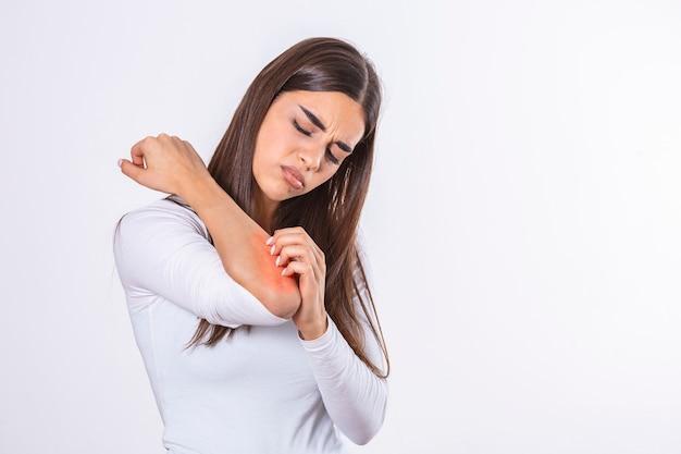 Mulher jovem coçando o braço que coça. problemas de pele e alergia. conceito de saúde e médico.
