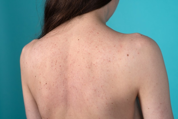 Mulher jovem com acne, com manchas vermelhas nas costas