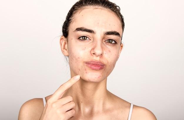 Mulher jovem com pele problemática