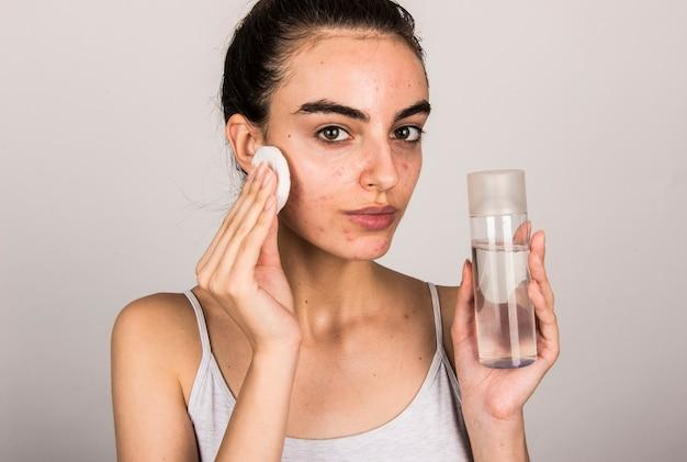 Mulher jovem com problemas de pele e acne, segurando um produto para a pele