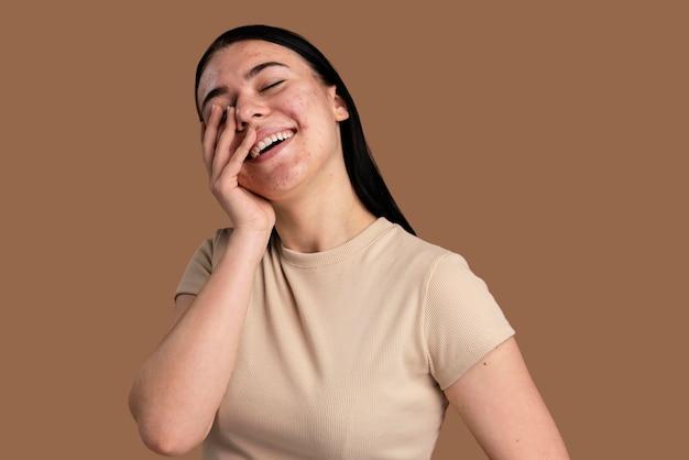 Mulher jovem confiante com acne