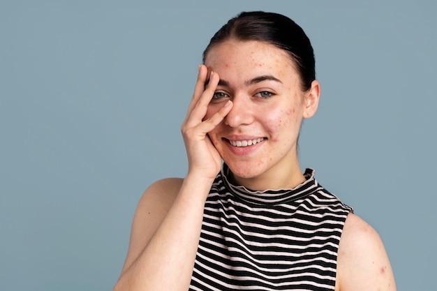 Mulher jovem confiante com sua acne