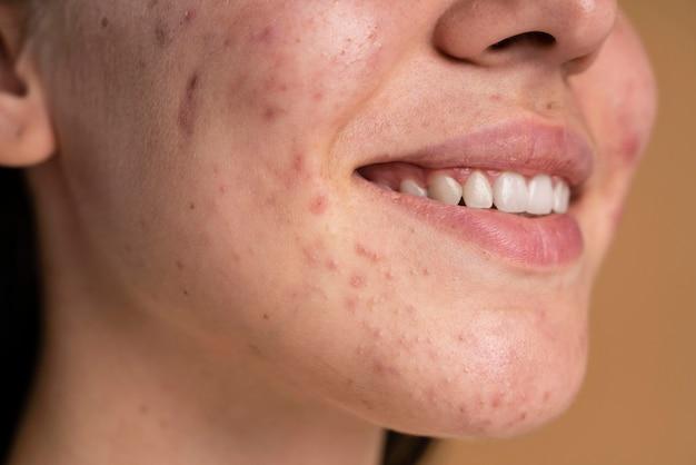 Mulher jovem confiante com um close de acne