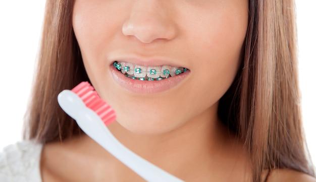 Mulher jovem e atraente com suportes de limpeza dos dentes