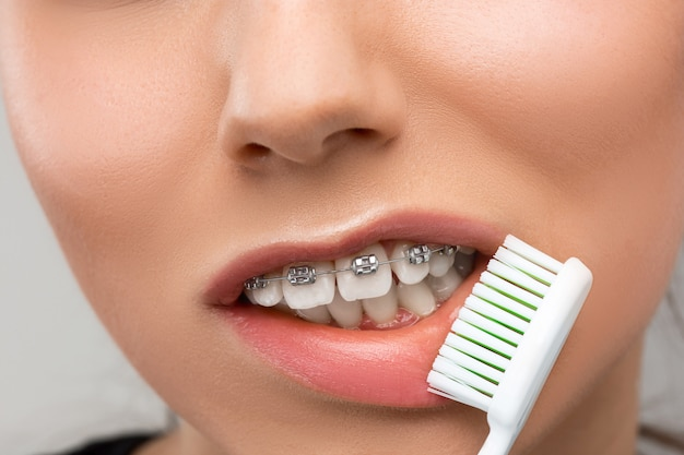Mulher jovem e bonita com aparelho de dentes