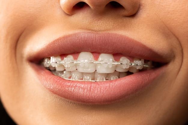 Mulher jovem e bonita com aparelho dentário rosa