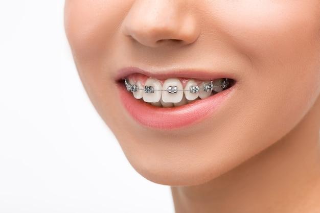 Mulher jovem e bonita com aparelho dentário