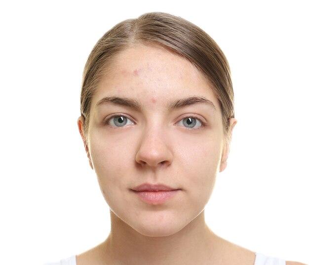 Mulher jovem e bonita com pele problemática em fundo branco