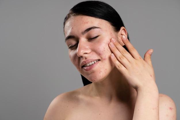 Mulher jovem mostrando sua acne com confiança