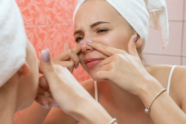 Mulher jovem olhando e espremer acne em um rosto na frente do espelho. garota feia com problemas de pele, adolescente com espinhas. cuidados com a pele. beleza