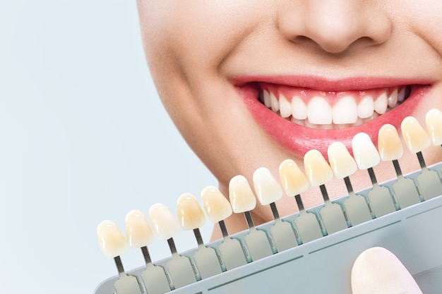 Mulher jovem sorridente. clareamento cosmético dentário em clínica odontológica. seleção do tom do