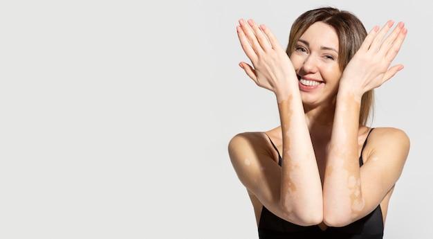 Mulher jovem única com pele vitiligo