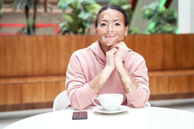 Mulher negra afro-americana com problema de pele com pigmentação vitiligo vestida de interior com capuz rosa mesa de estar