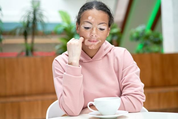 Mulher negra afro-americana com vitiligo pigmentação problema de pele interior vestida com capuz rosa melancolia humor pensando em