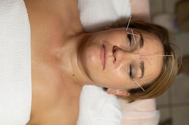 Mulher no salão fazendo terapia de acupuntura