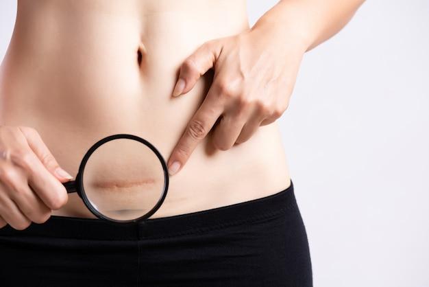Mulher que mostra em sua cicatriz escura da barriga de uma cesariana. cuidados de saúde.