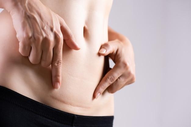Mulher que mostra em sua cicatriz escura da barriga de uma cesariana. cuidados de saúde .