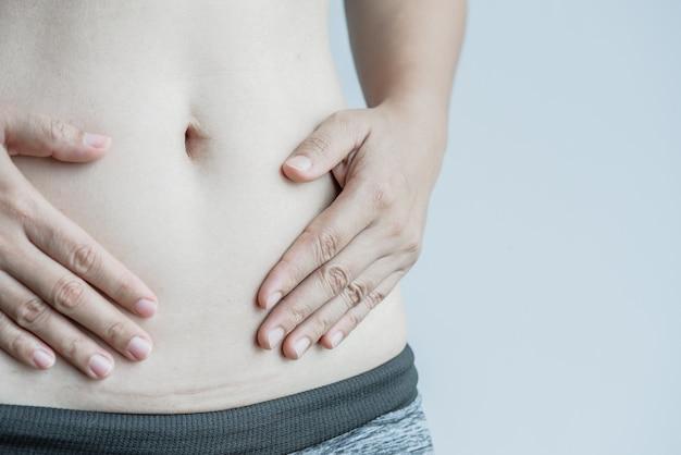 Mulher que mostra em sua cicatriz escura da barriga de uma cesariana.