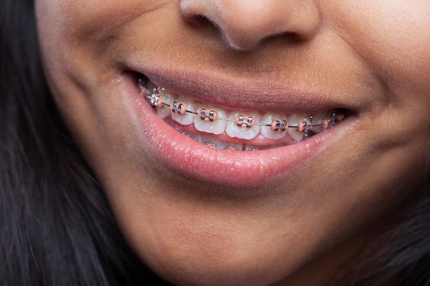 Mulher que sorri com aparelho de dentes