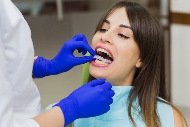 Mulher recebendo retentores invisíveis no dentista