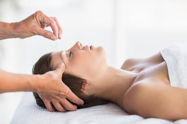 Mulher recebendo tratamento de acupuntura