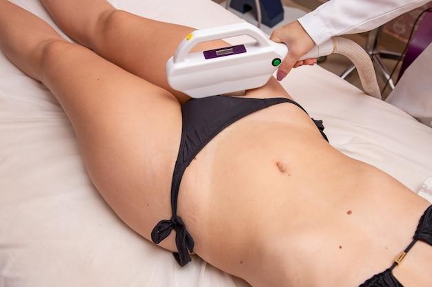 Mulher removendo pelos da virilha com fotoepilação. conceito de verão