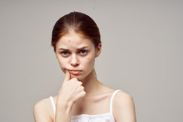 Mulher ruiva com espinhas no fundo de higiene facial isolado