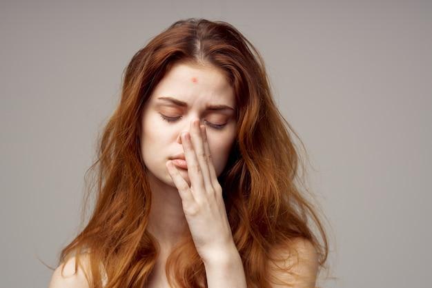 Mulher ruiva com problemas de pele no rosto dermatologia closeup