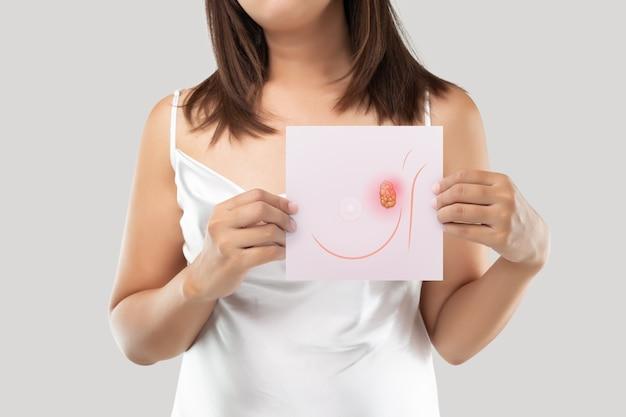 Mulher segurando um papel rosa claro com a imagem das células do câncer de mama.