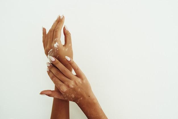 Mulher servindo creme para o corpo da garrafa na mão com vitiligo