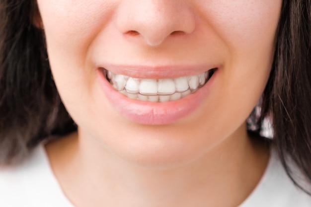 Mulher sorridente com dentes brancos usando alinhador removível