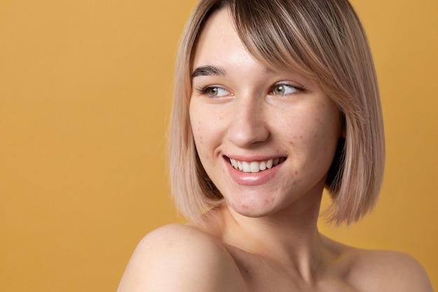 Mulher sorridente de tiro médio com acne